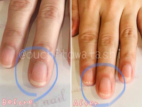 【自爪ケア】飾らなくてもキレイな爪が実現する「ももいろネイル」セルフケアレッスン